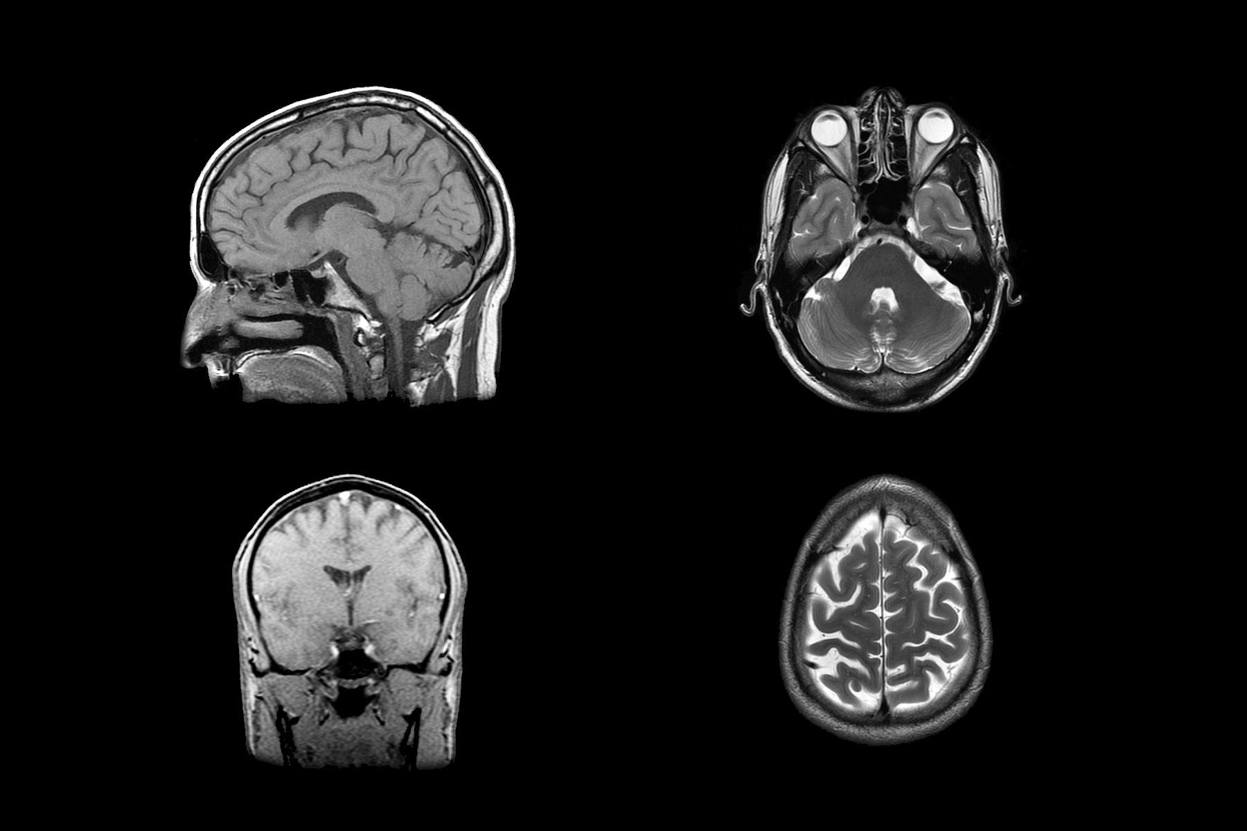Mindfulness y el cerebro